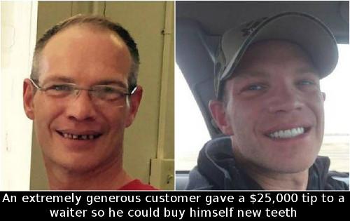 tip-teeth